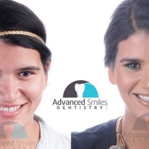 dentista en tijuana implantes dentales
