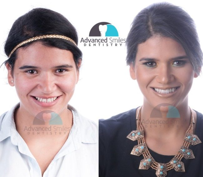Before & After www.advancedsmilesdentistry.com