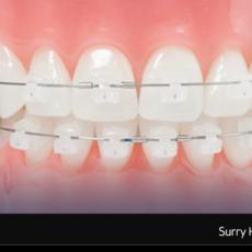 Clear-Ceramic-Orthodontics-Braces-Surry-Hills-Family-Sydney