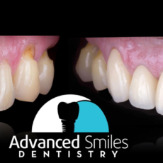 Patient new smile advanced smiles dentistry