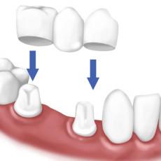 dental_crowns_1-1024x552