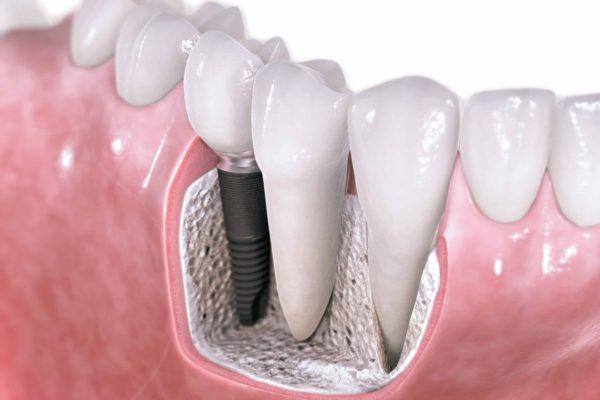 Dentista en Tijuana